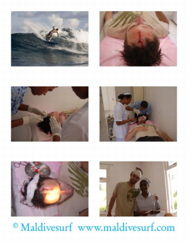 Suture au dispensaire / Copyright ©Maldivesurf