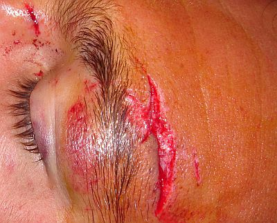Deep laceration of the arch of the left eyebrow caused by the tip of this surfer's fish surfboard (7 stitches). Copyright www.surf-prevention.com