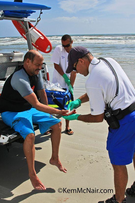 Attaques de requins en Floride : photos des morsures