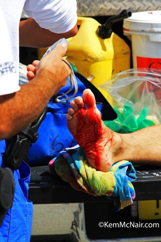 Plaies profondes du pied : blessures occasionnées par un requin en Floride . Copyright KemMcNair.com