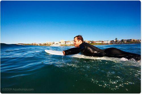 Un surfeur attaqué par un requin encourage à donner son sang