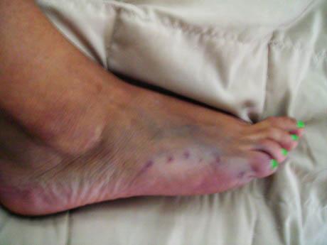 Photo de morsure de requin au niveau du pied d'une jeune femme avec du vernis à ongle vert fluo.