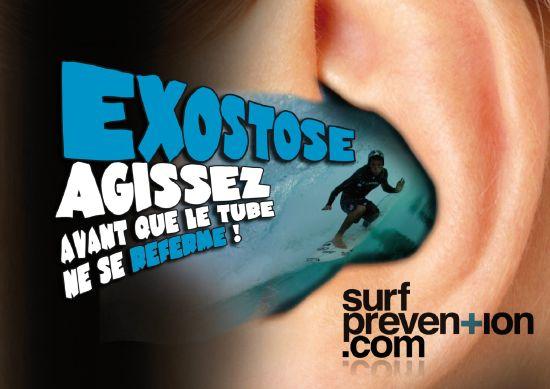 Affiche de prévention de l'exostose chez le surfeur qui devrait porter bouchons d'oreille, bandeau néoprène ou cagoule sous son casque en hiver...Copyright www.surf-prevention.com