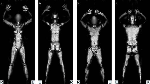 Les scanners corporels dans les aéroports sont-ils dangereux ?