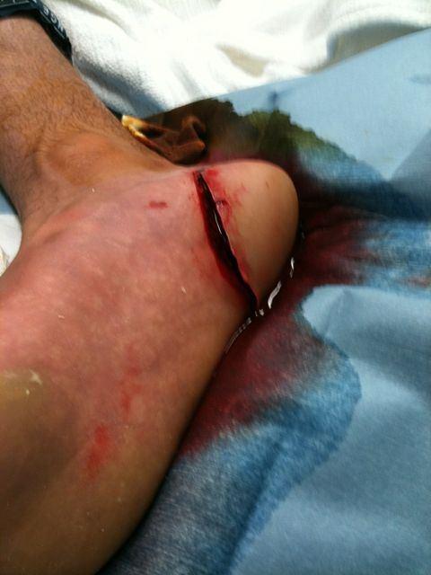 Joel Parkinson victime d'une nouvelle blessure au pied