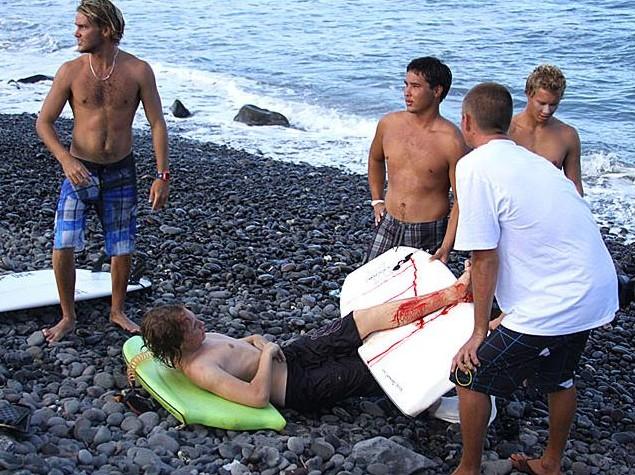Attaque de requin : le pied d'un bodyboardeur sauvé par sa palme !