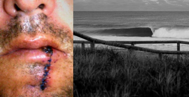 Témoignage d'un surfeur victime du «baiser de la mort»