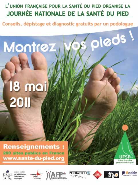 Journée santé du pied : montrez vos pieds à un podologue !