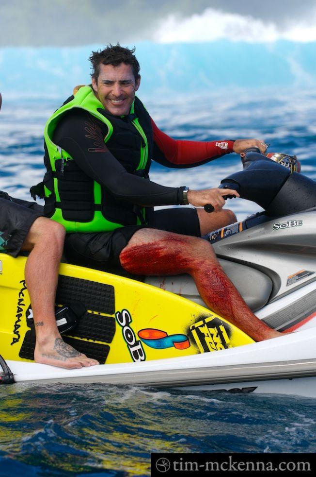 Bobologie : comment soigner une plaie sur le reef ?