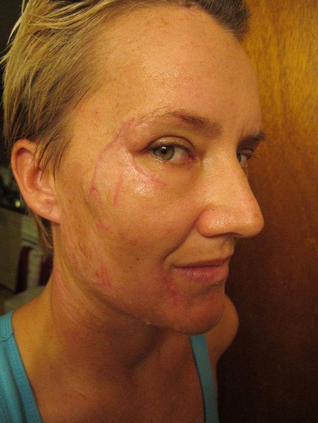 La surfeuse Keala Kennelly défigurée dans un accident à Teahupoo