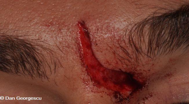 Cas Clinique : un surfeur se blesse entre les deux yeux avec sa planche