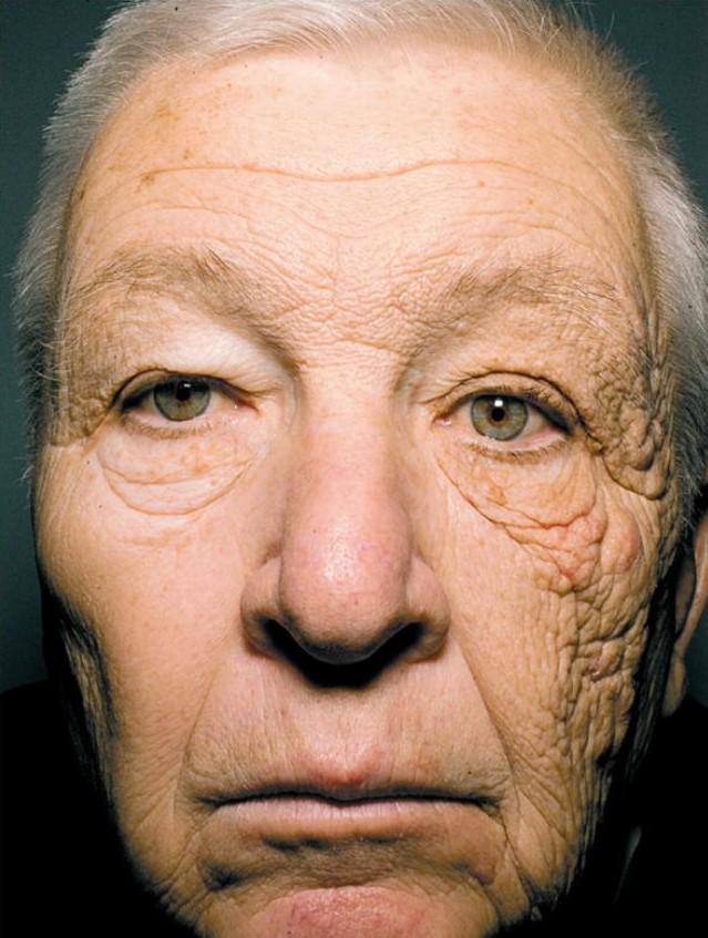 Héliodermie: comment les rayons UVA provoquent le vieillissement de la peau