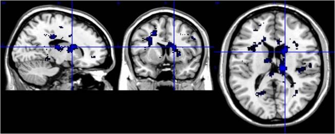 Comment la Vision de la Mer stimule notre Cerveau