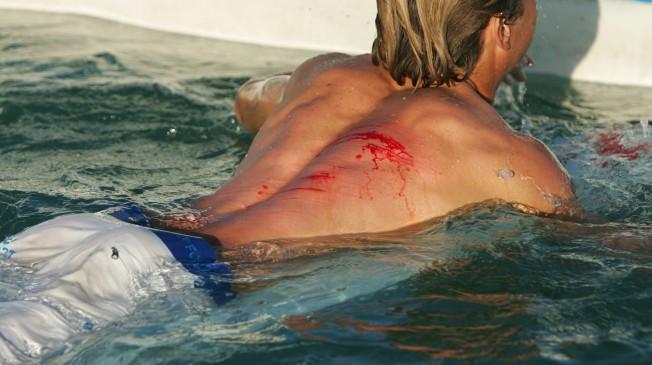 Surf Tips: comment éviter de s'écorcher sur le Reef ?