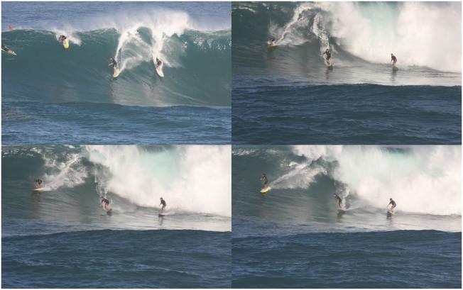 Ptérygion: un Surfeur victime d'un Wipeout chirurgical !