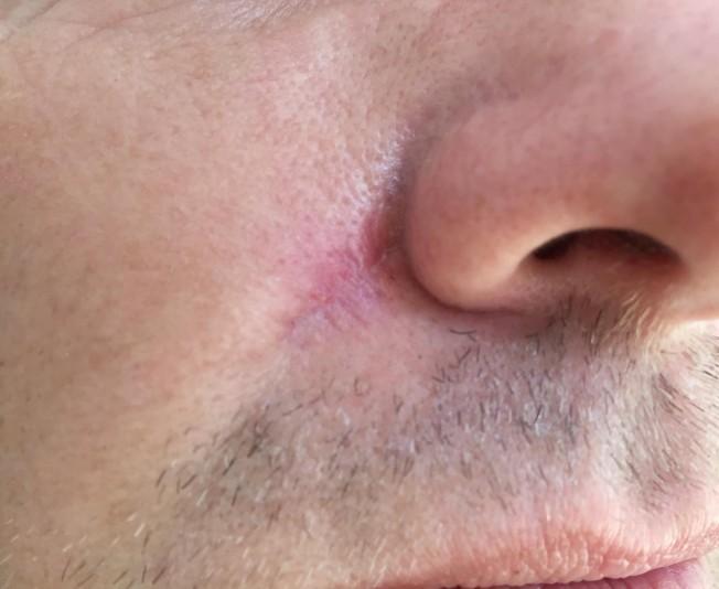 cicatrice cancer de la peau