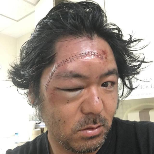 foil surfing accident
